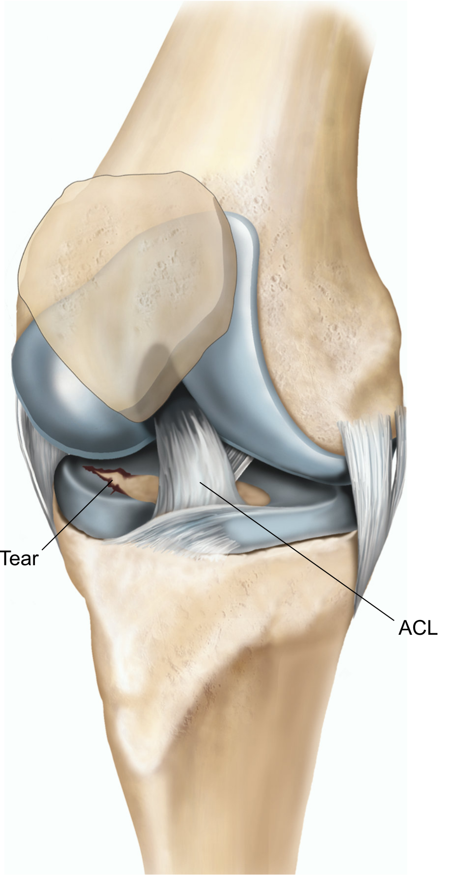 A right knee with a tear in the lateral meniscus