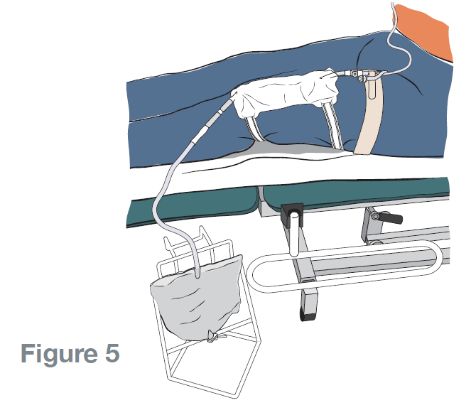 Step 9: Position the night bag or bottle below the level of your bladder. This will enable you to move in bed without the risk of pulling on your catheter