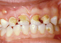 A young child's mouth showing yellowed and crumbling teeth – a sign of advanced early childhood dental decay.