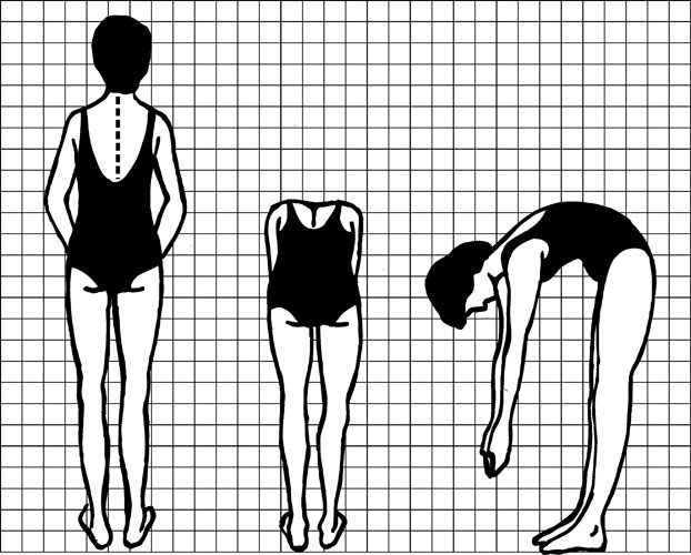 Diagram showing a person performing the tests used to look for signs of scoliosis