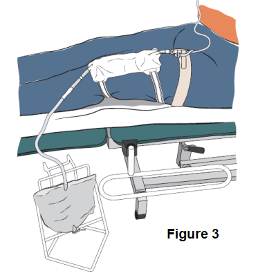Diagram showing a catheter system attached to a night bag, that has been correctly placed stable position.