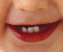 Baby smiling , showing three baby teeth