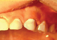 An infant's teeth showing white spots on the gum line, which is an early sign of decay
