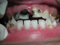Teeth showing black and yellow tooth decay