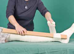 splint being applied over bandaged leg