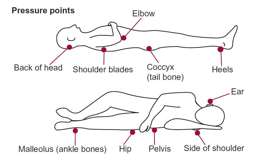 During your hospital stay pressure points on the human body when lying down ccuart Images