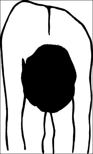Drawing of a person performing the forward bending test, which reveals they have one side of the back higher than the other.