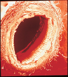 A cross section of a healthy human blood vessel