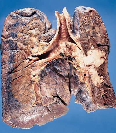 Smoker's lung featuring a cancerous tumour